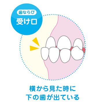 横から見たときに下の歯が出ている
