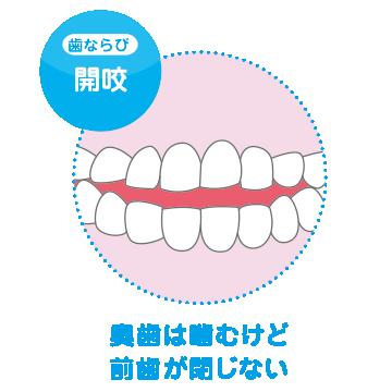 奥歯は噛むけど前歯がとじない